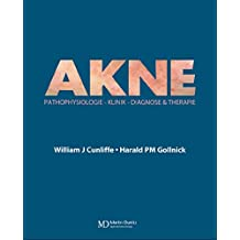 Acne: Diagnose und Therapie (German Edition)