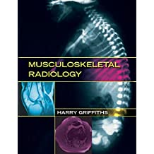 Musculoskeletal Radiology (English Edition)