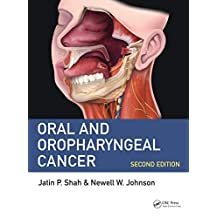 Oral and Oropharyngeal Cancer (English Edition)