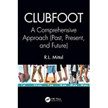 Clubfoot: A Comprehensive Approach (Past, Present, and Future) (English Edition)