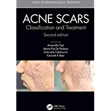 Acne Scars: Classification and Treatment, Second Edition (Series in Dermatological Treatment) (English Edition)