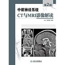 中枢神经系统CT和MRI影像解读(第2版)