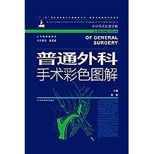 """普通外科手术彩色图解 (""""十二五""""国家重点图书出版规划项目 国家出版基金项目)"""