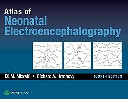 """Atlas of Neonatal Electroencephalography, Fourth Edition (English Edition)"",作者:[Richard A. Hrachovy MD, MD Mizrahi, Eli M.]"