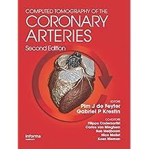 Computed Tomography of the Coronary Arteries (English Edition)