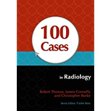 100 Cases in Radiology (English Edition)