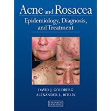 Acne and Rosacea: Epidemiology, Diagnosis and Treatment (English Edition)