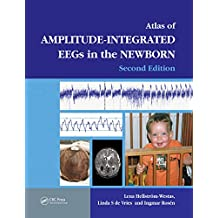 An Atlas of Amplitude-Integrated EEGs in the Newborn (Encyclopedia of Visual Medicine Series) (English Edition)