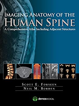 """Imaging Anatomy of the Human Spine: A Comprehensive Atlas Including Adjacent Structures (English Edition)"",作者:[MD Forseen, Scott E., MD Borden, Neil M.]"