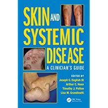 Skin and Systemic Disease: A Clinician's Guide (English Edition)