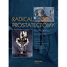 Radical Prostatectomy: From Open to Robotic (English Edition)