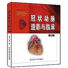 冠状动脉造影与临床(第3版)