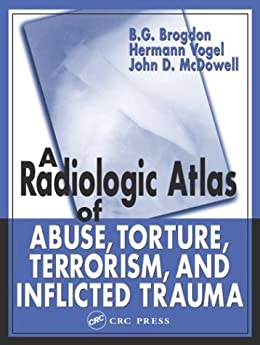 """Radiologic Atlas of Abuse, Torture, Terrorism, and Inflicted Trauma (English Edition)"",作者:[Peter Volk]"