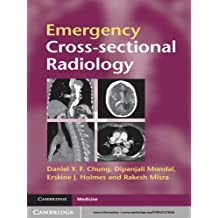 Emergency Cross-sectional Radiology (Cambridge Medicine (Paperback)) (English Edition)