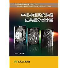 中枢神经系统肿瘤磁共振分类诊断