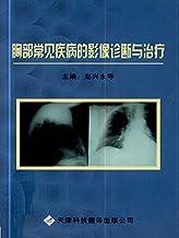 胸部常见疾病的影像诊断与治疗