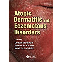 Atopic Dermatitis and Eczematous Disorders (English Edition)