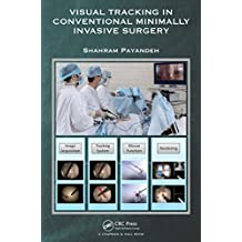 Visual Tracking in Conventional Minimally Invasive Surgery (English Edition)