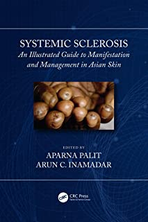 Systemic Sclerosis: An Illustrated Guide to Manifestation and Management in Asian Skin (English Edition)